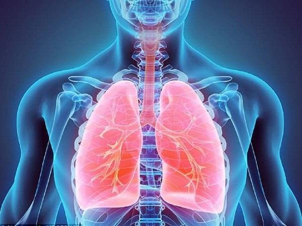 Viêm phổi khá nguy hiểm