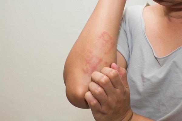 cách chữa trị eczema