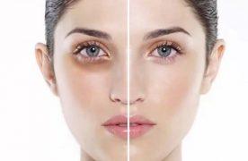 Cách giảm thâm quầng mắt