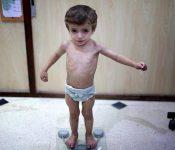 """Những dấu hiệu """"trẻ suy dinh dưỡng"""" mẹ không nên chủ quan"""