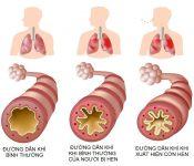 Bệnh hen suyễn là bệnh gì? Nguyên nhân và cách điều trị