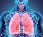 Ung thư phổi là gì? Dấu hiệu của bệnh phổi