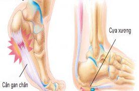 Viêm gân gót chân là bệnh gì? Cách điều trị như thế nào?