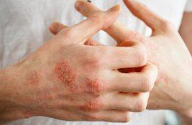 5 cách trị bệnh chàm tại nhà đơn giản theo phương pháp dân gian
