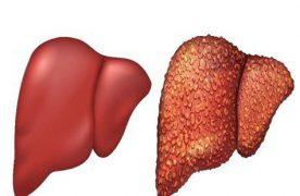 Viêm gan B là bệnh gì? Triệu chứng viêm gan B như thế nào