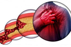 Nguyên nhân và các triệu chứng của bệnh máu nhiễm mỡ