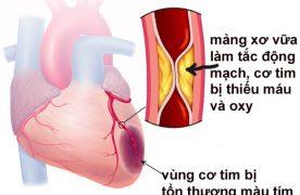 Những triệu chứng của bệnh thiếu máu cơ tim