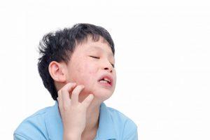 Bệnh quai bị là bệnh gì? Nguyên nhân và cách điều trị ra sao