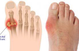 Góc giải đáp: Bệnh Gout là gì? Nguyên nhân và dấu hiệu nhận biết ra sau