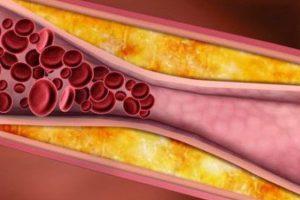 5 Bài thuốc nam chữa bệnh mỡ máu cao bạn không nên bỏ qua